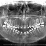 Radiografía Panoramica