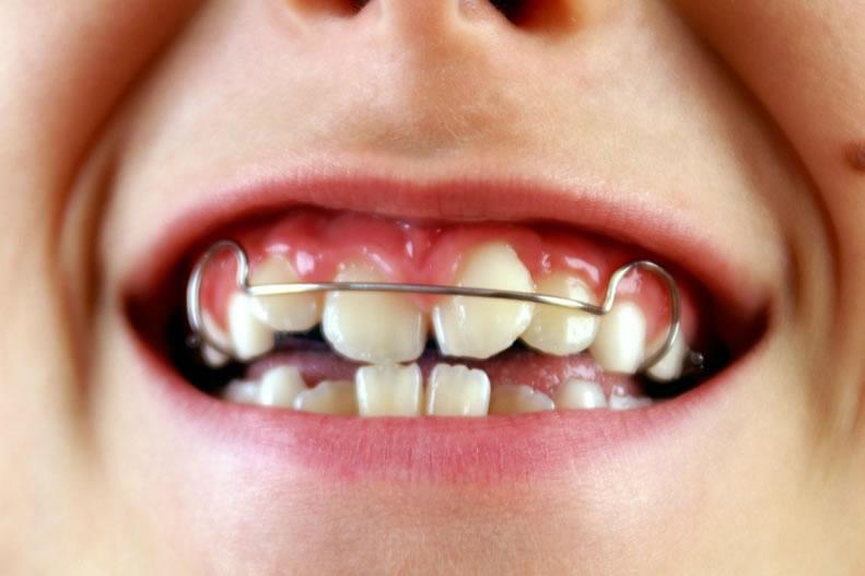 Caso Ortodoncia