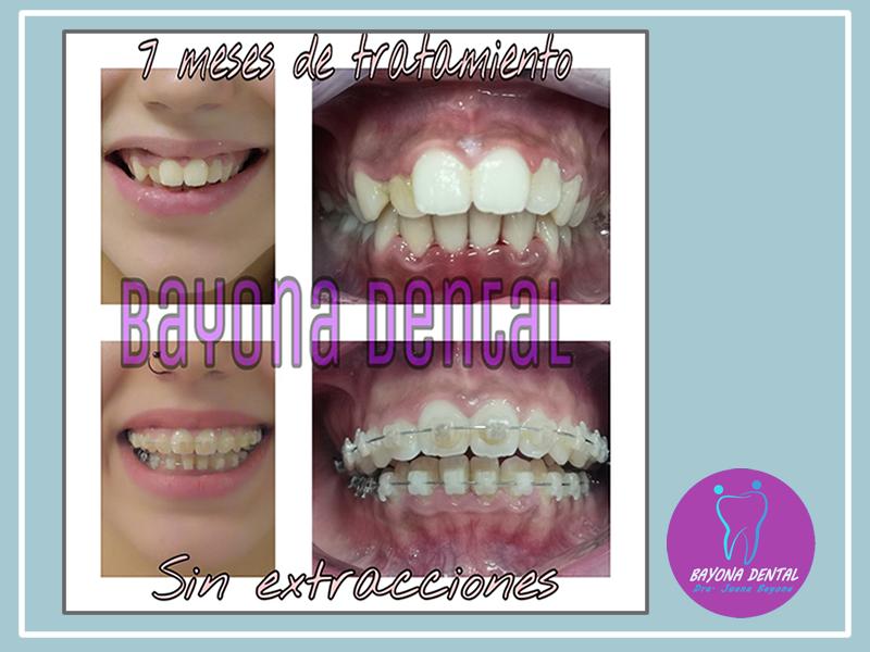 Tratamiento Ortodoncia Sin Extracciones